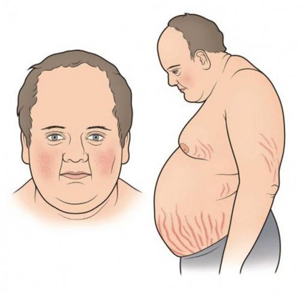 """Стресс, """"кортизоловое ожирение"""". Избавляемся от проблемы"""