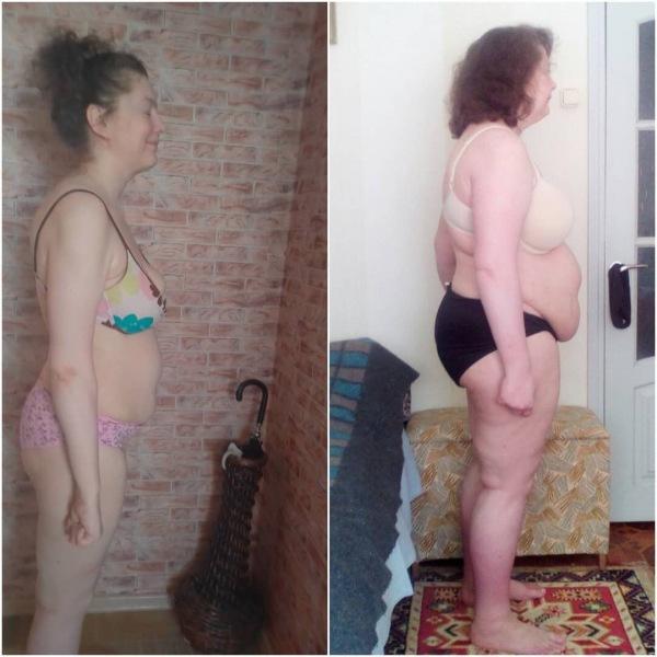 Что с моей кожей после похудения с 135кг до 57кг (фото)