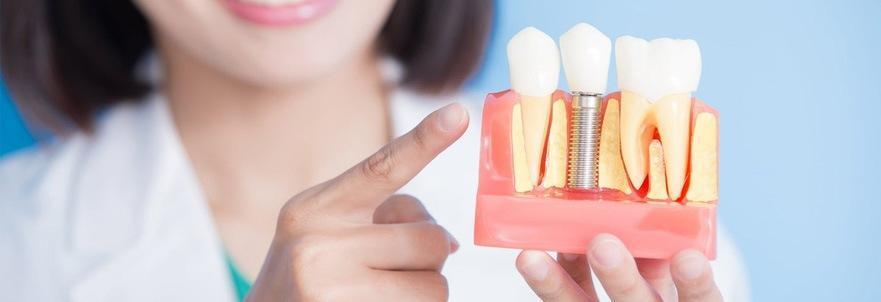 Зубная имплантация: основные направления процедур