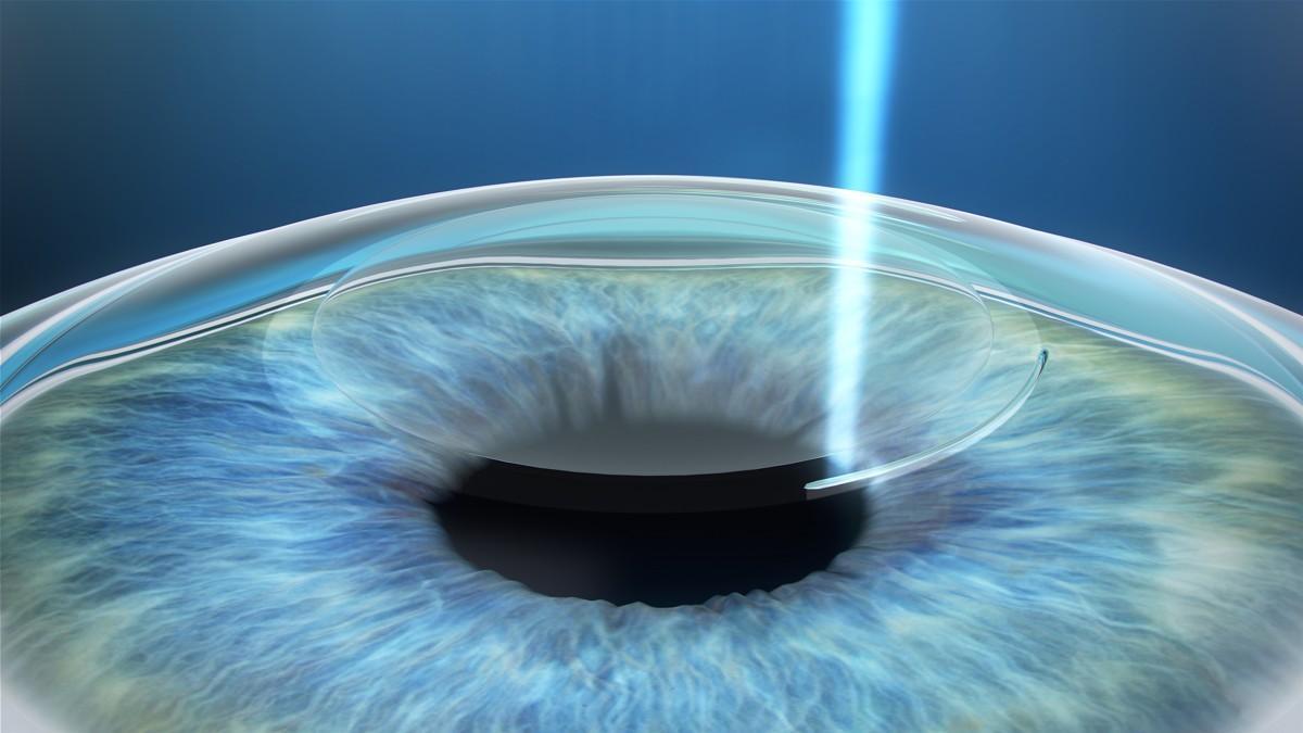 Устранение дефектов зрения: что следует знать о лазерной коррекции?