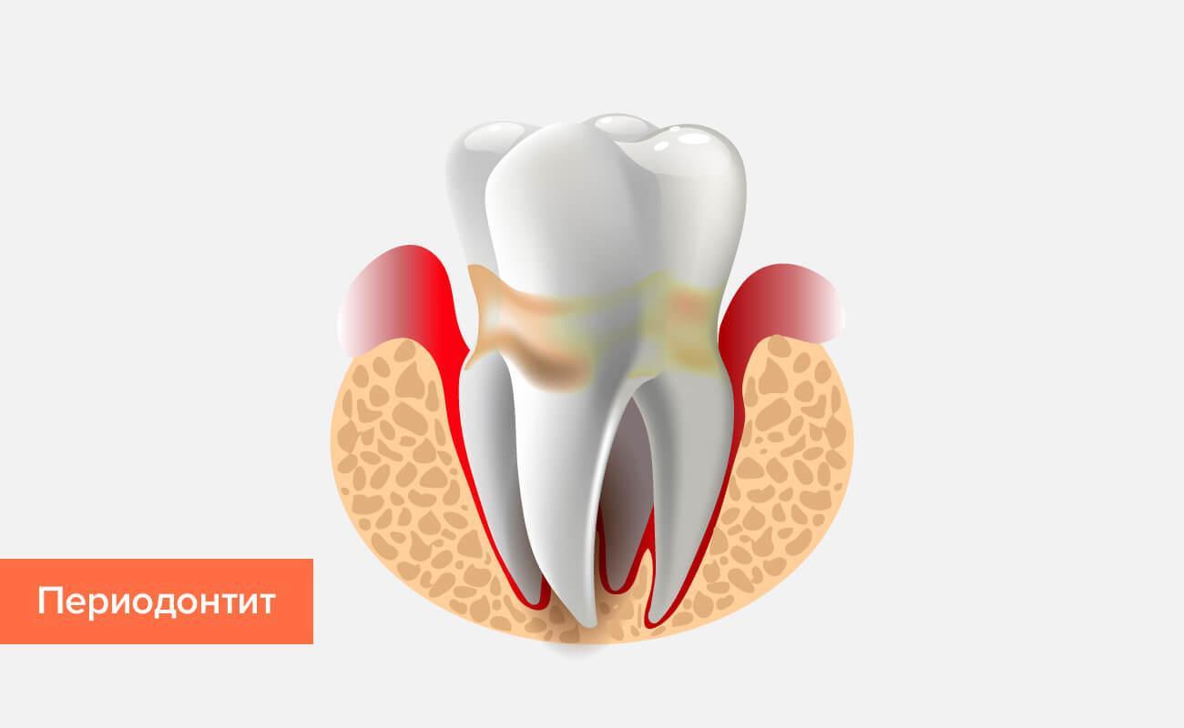 Периодонтит - угроза потери зубов и своевременное лечение
