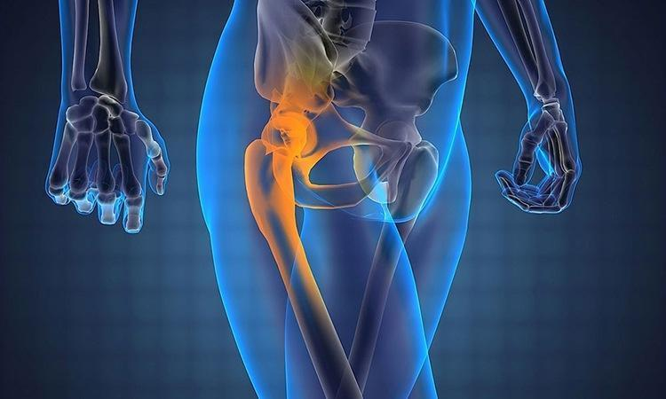 МРТ тазобедренного сустава: показания и ход исследования