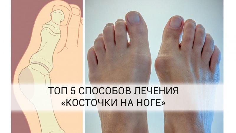 Как избавиться от кости на ноге? Совет от Елены Малышевой