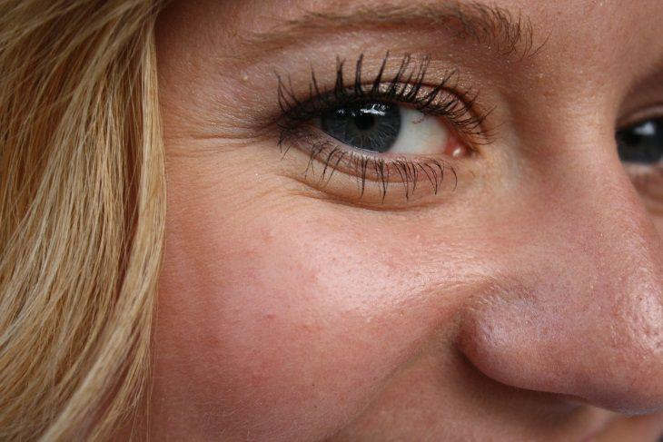 Какие морщины на лице говорят о проблемах с внутренними органами