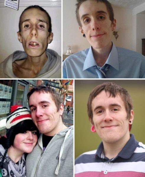 Во время и после анорексии: 10 фото людей, которым удалось выжить