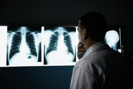 Российский врач рассказал о самом частом осложнении после коронавируса