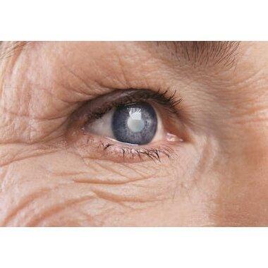 7 не столь очевидных признаков катаракты: научимся распознавать